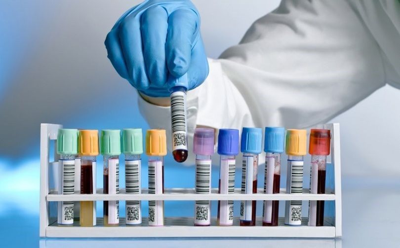 난자기증프로그램위해 필요한 검사와 분석